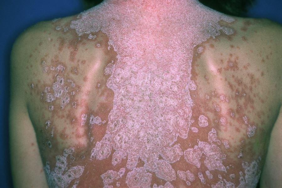 Guselkumab More Effective Than Adalimumab for Reduction of Psoriasis Symptoms