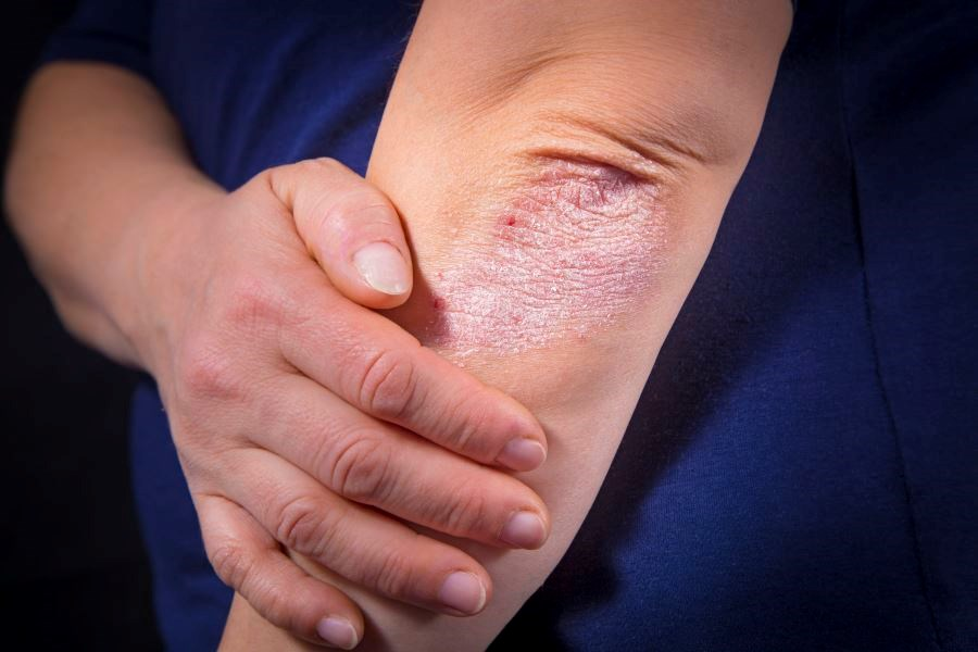 Brodalumab Effective for Reduction of Itch Associated With Psoriasis