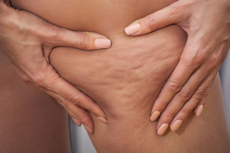 Cellulite Effectively Reduced With Concurrent Radiofrequency, Pressure Energy Treatment