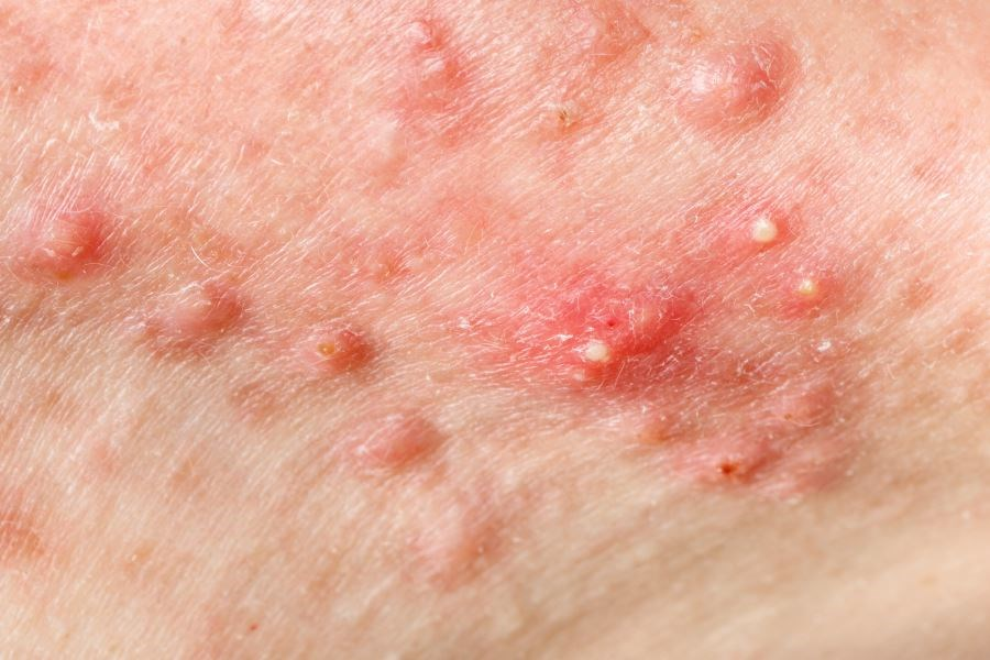 Combination Therapy for Acne May Be Good Alternative to Isotretinoin