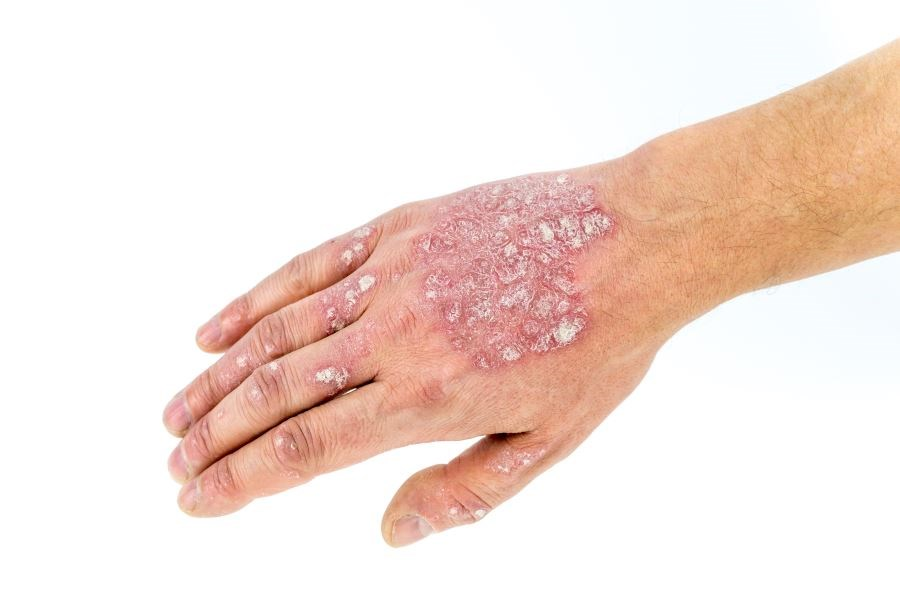 Psoriasis Treatment Ixekizumab Safe for Cardiovascular Health
