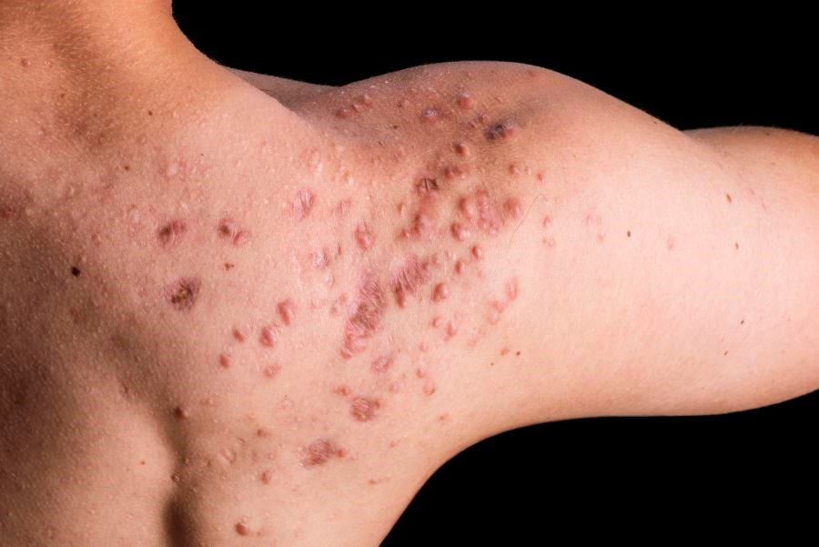 Acne Scars Reduced, Prevented With Topical Adapalene/Benzoyl Peroxide