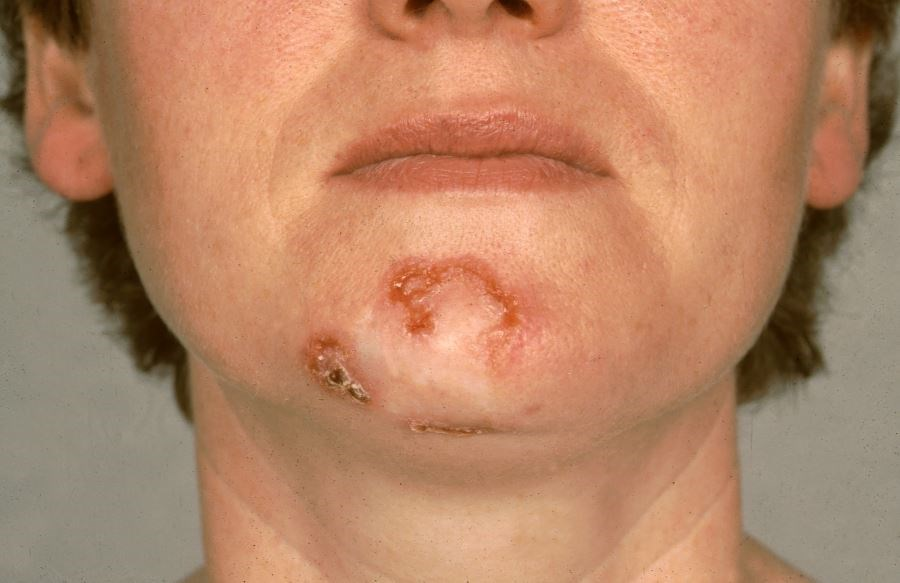 Review: Treatments for Primary Basal Cell Carcinoma Compared