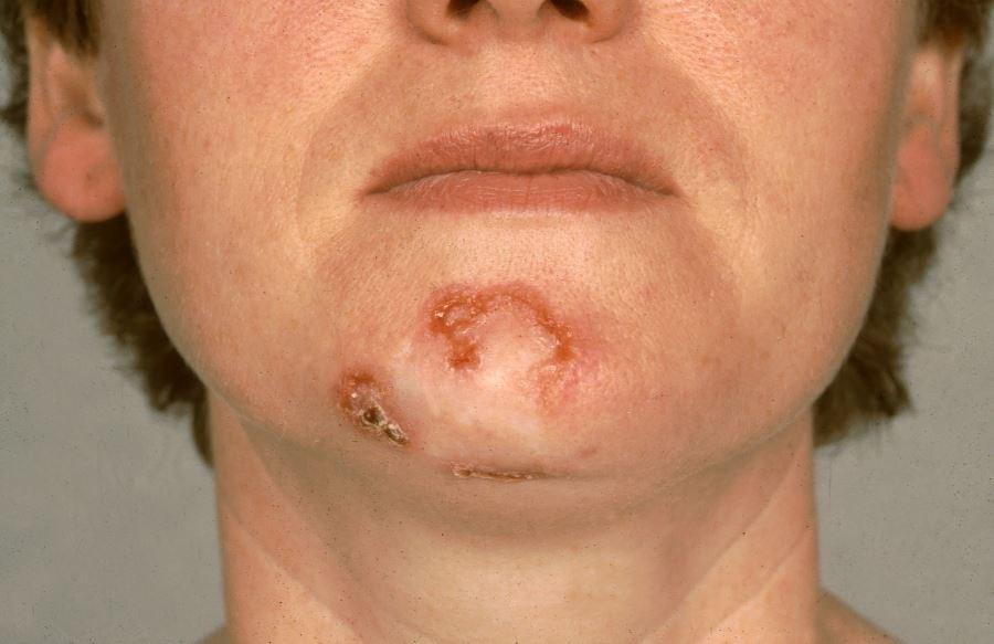Melanoma, Nonmelanoma Skin Cancer Associated With Reduced Risk for Alzheimer's