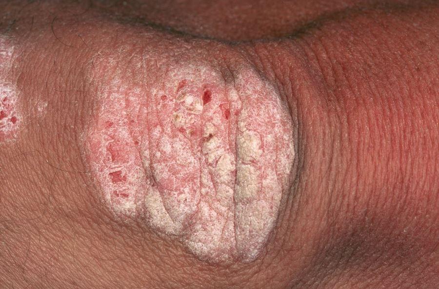 Ixekizumab Effective for Psoriasis Regardless of Psoriatic Arthritis Status