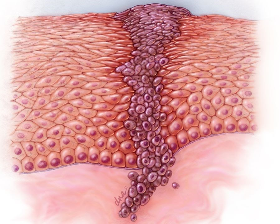 The researchers note that surgical excision is still the primary treatment modality for melanoma, while Mohs surgery or other forms of staged excision may be considered for certain melanomas.