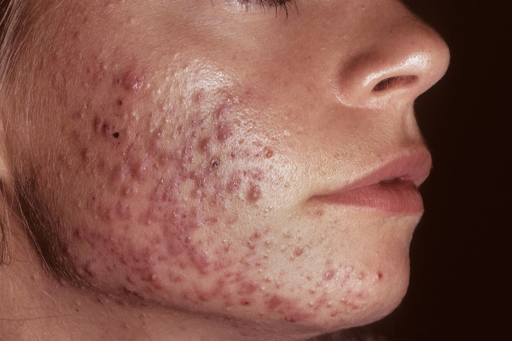 Although HAAT is not generally used as a first-line systemic therapy in women with acne, it is associated with shorter cumulative antibiotic duration.
