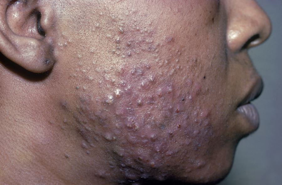 In patients with darker skin color, acne scarring is further complicated by hyperpigmentation.