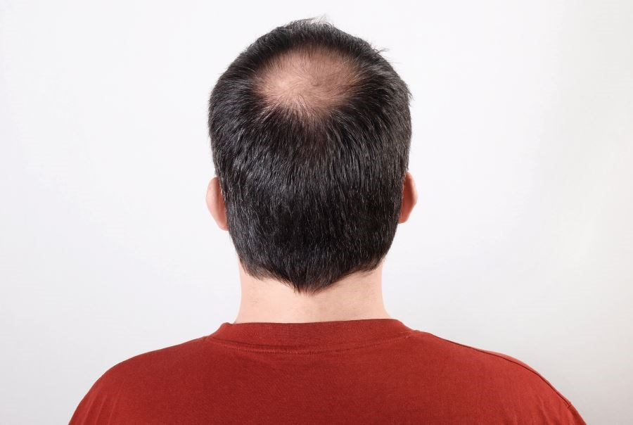 Minoxidil and oral finasteride are the only 2 FDA-approve therapies for androgenetic alopecia.