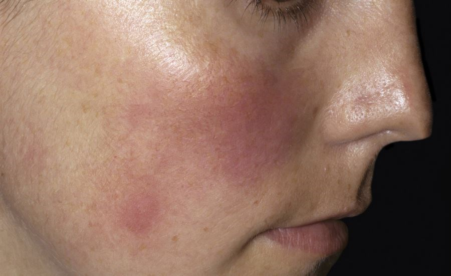 Patients with rosacea often have psychiatric comorbidities, social anxiety, and suffer from embarrassment.