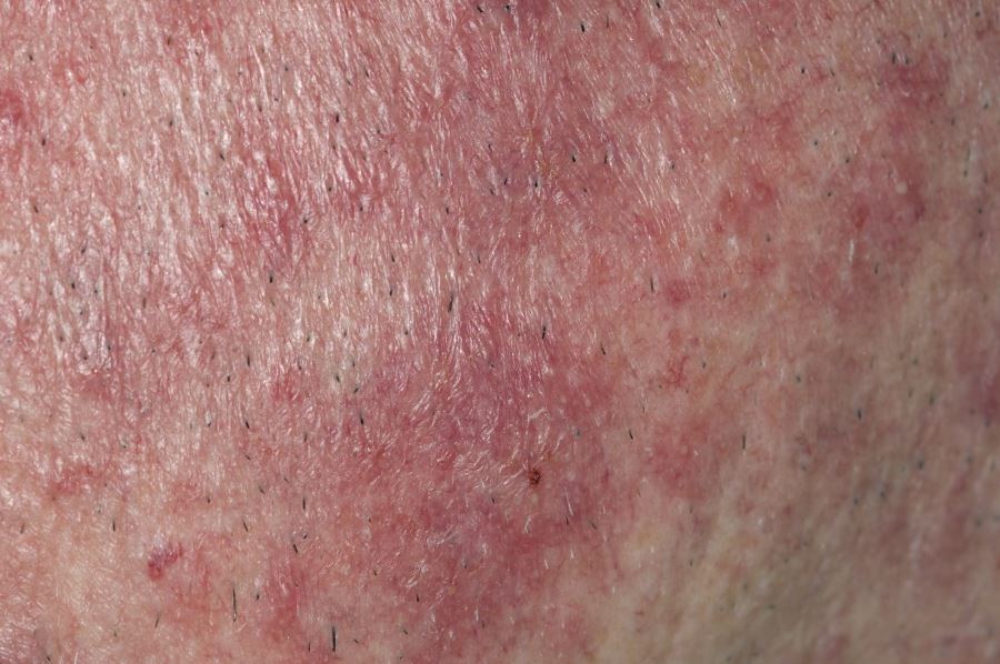 Oxymetazoline Reduces Facial Erythema in Moderate to Severe Rosacea
