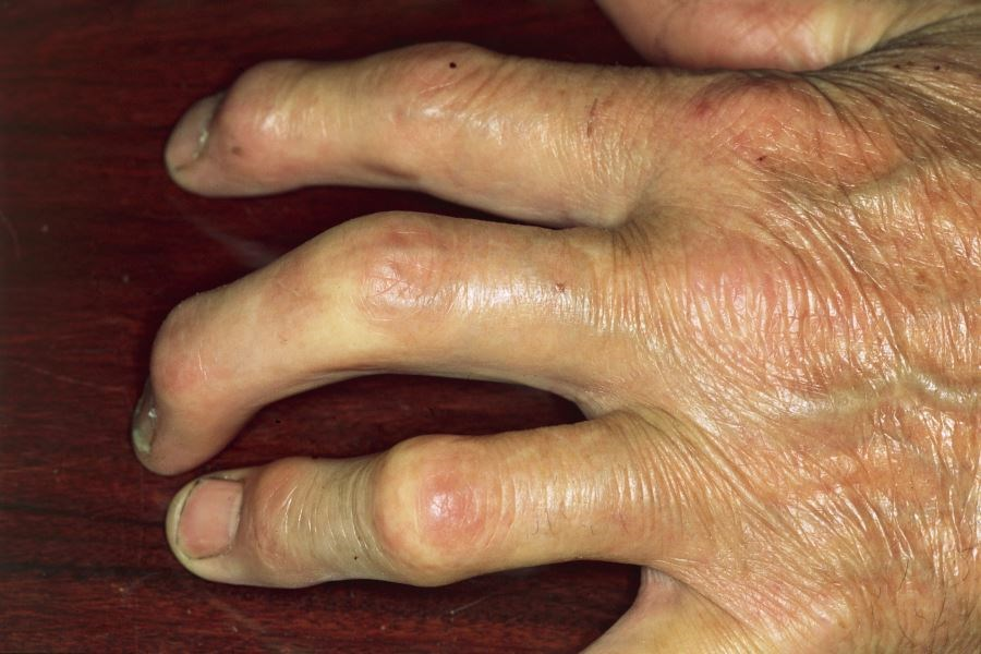 CONTEST Not Superior to PEST Questionnaire for Diagnosing Psoriatic Arthritis