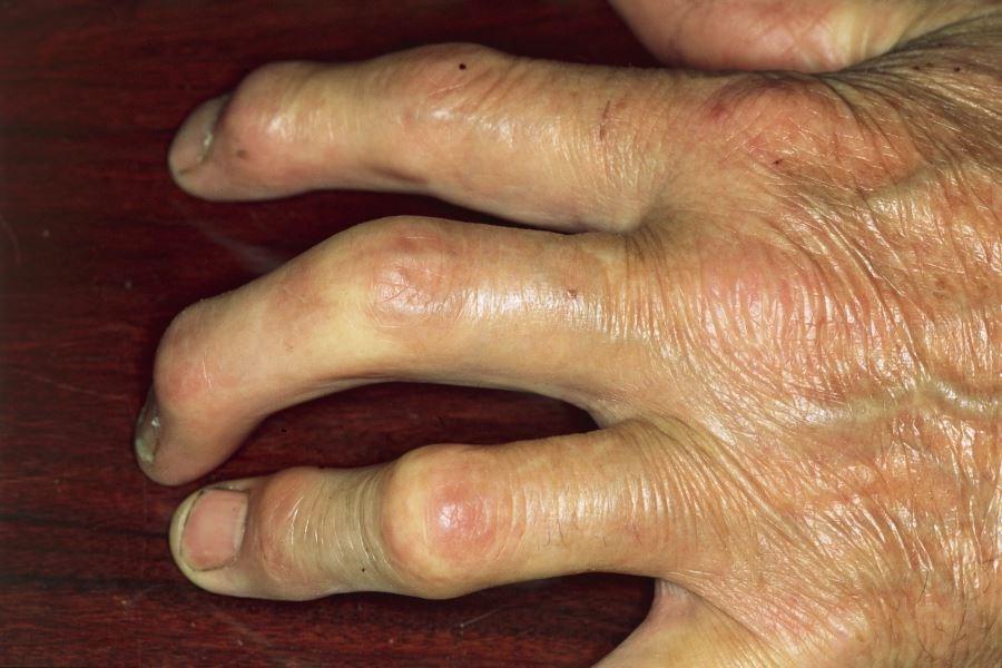 CONTEST Not Superior to PEST Questionnaire for Diagnosing Psoriatic Arthritis