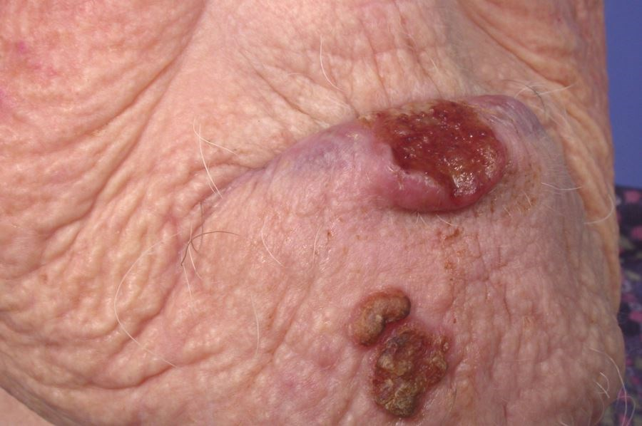 Nodal metastasis was associated with vermilion lip location and invasion beyond fat.