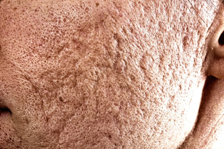 A link exists between duration and severity of inflammation and alteration of sebaceous glands leading to atrophic scar formation among certain patients with acne.