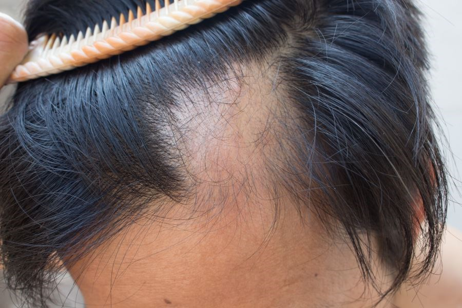 An osteoporosis Tx may promote hair growth to the same magnitude as CsA (if not better), and without its side effects.