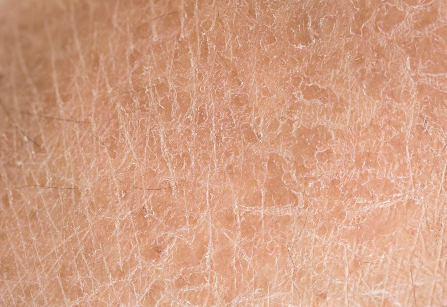 Skin Autofluorescence Predicts T2DM, Heart Disease, Mortality