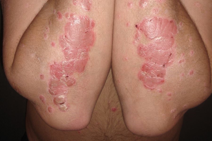 Halobetasol, Tazarotene Combination Therapy Demonstrate Lasting Efficacy for Plaque Psoriasis