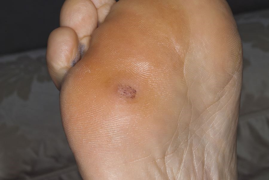Microneedling Plus Bleomycin Spraying Superior for Plantar Wart Treatment
