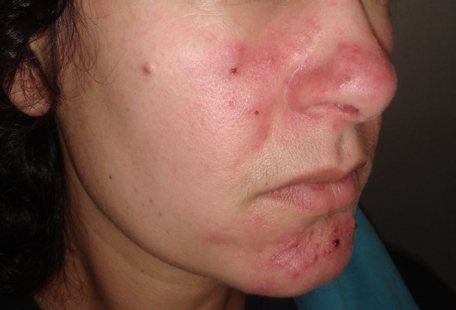 The Psychosocial Impact of Rosacea: Should Clinicians Be Concerned?