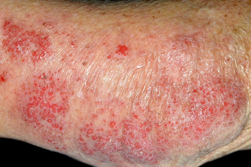 Variation of Staphylococcus aureus Clonal Complex Type Linked to Worse Disease Activity in Atopic Dermatitis