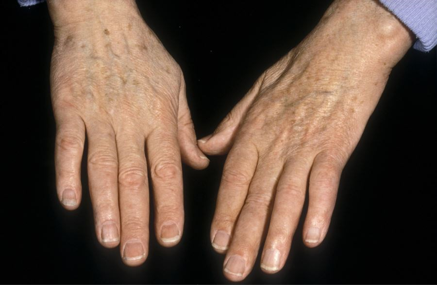 What Should the Dermatologist Know About Complex Regional Pain Syndrome?
