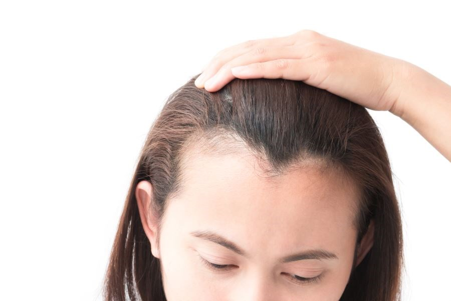 Strong Bidirectional Association Found Between Depression and Alopecia