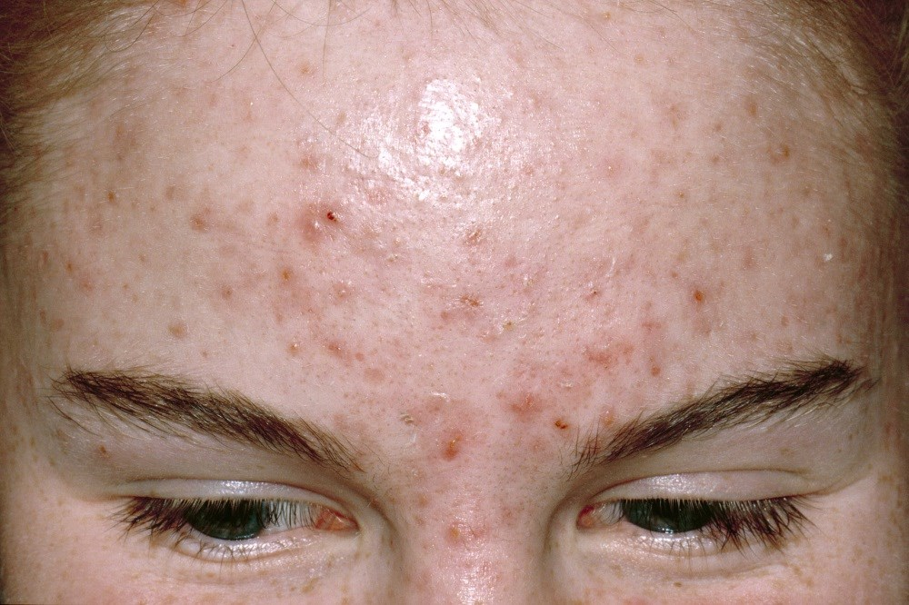 Hormonal Anti-Androgen Therapy Good Alternative to Systemic Antibiotics in Acne