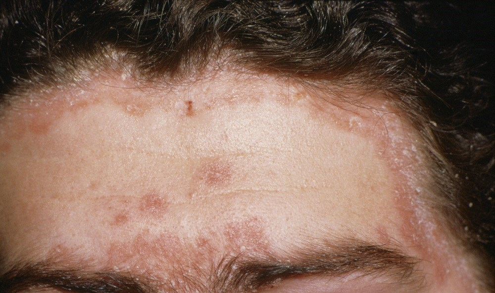 Many Psoriasis Patients Have Not Achieved Clear Skin, Despite Its Possibility