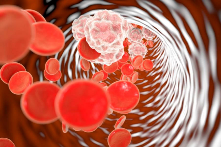 Adalimumab Associated With Reduced Inflammation in Psoriasis