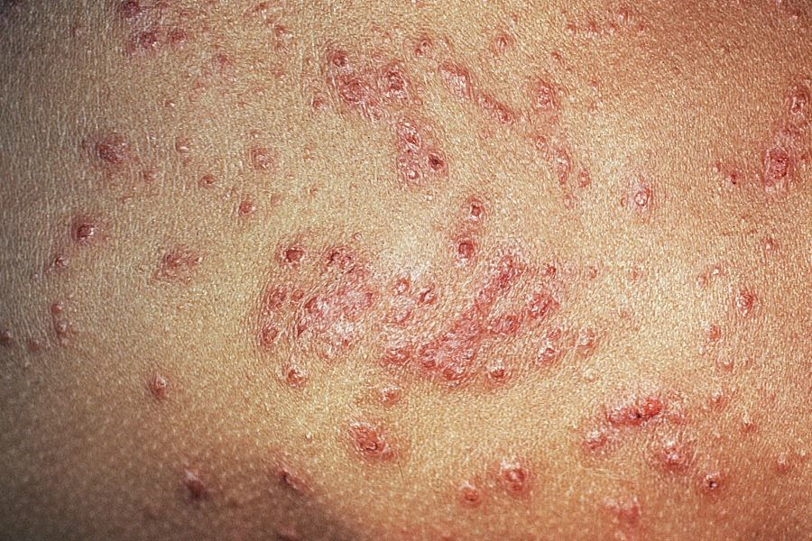 Early Results Indicate Prolonged Improvements in Atopic Dermatitis With GBR 830