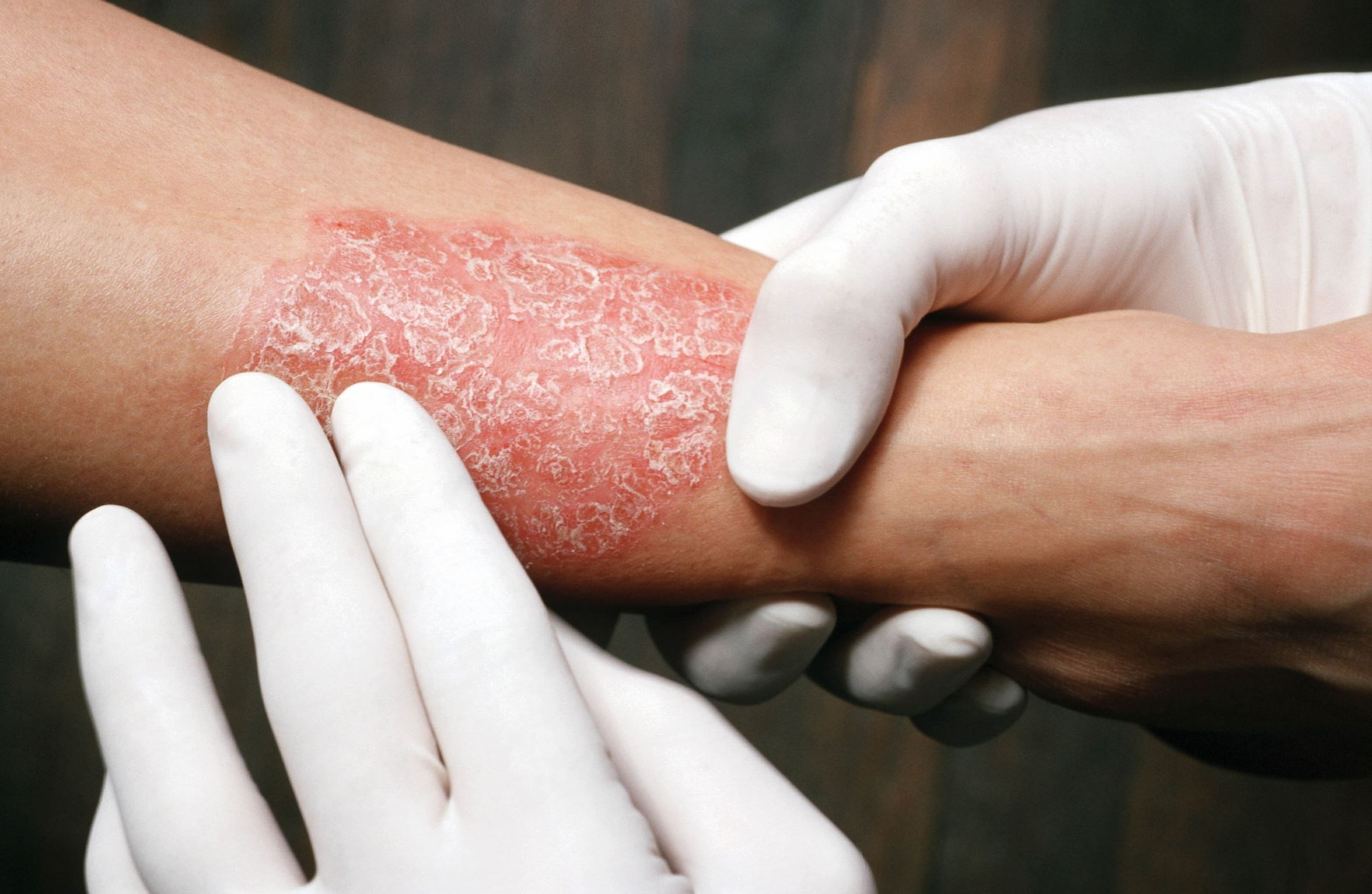Researchers found significant associations between psoriasis and Crohn's disease and between psoriasis and ulcerative colitis.