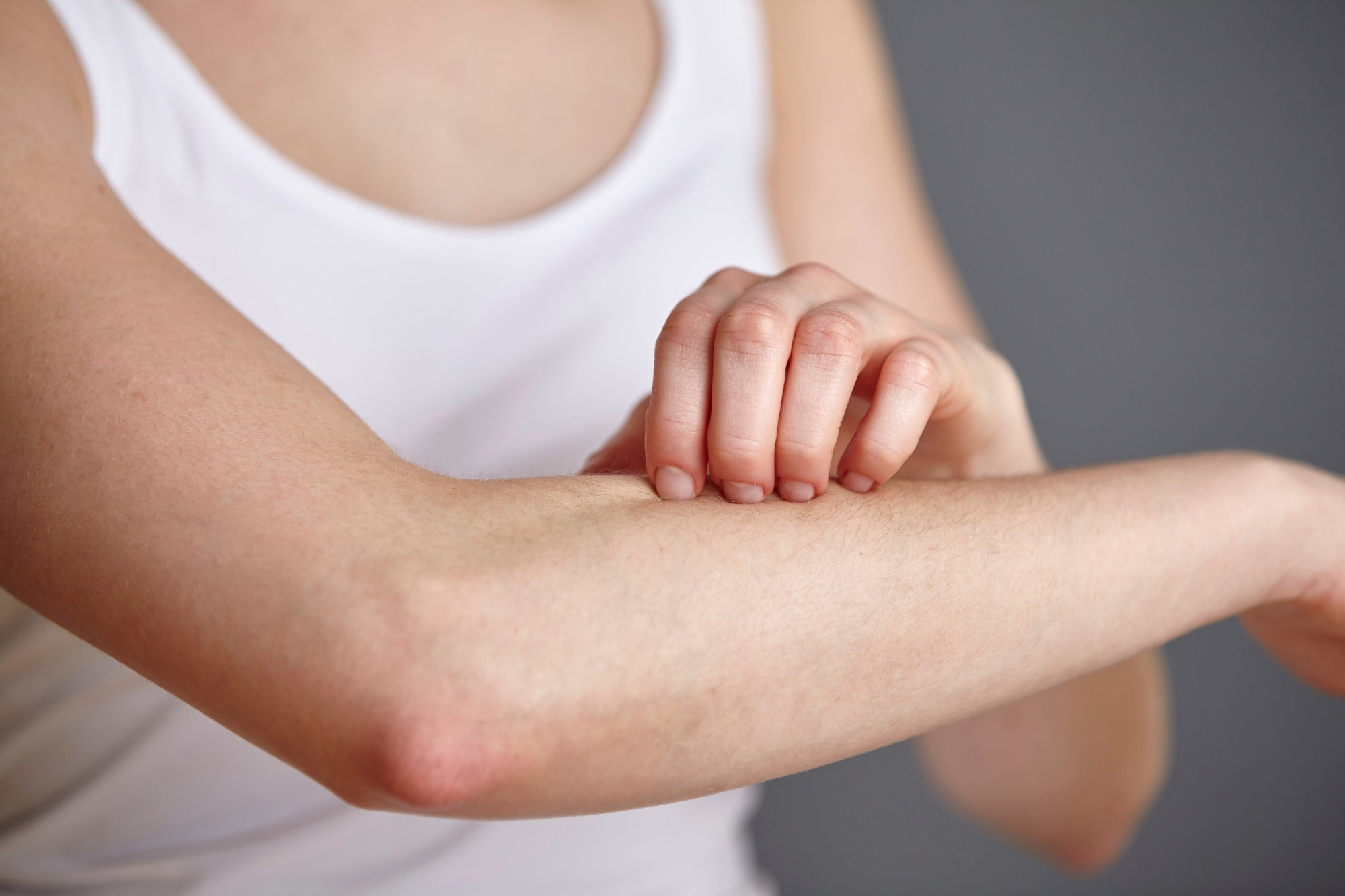 Menthoxypropanediol Provides Itch Relief in Atopic Dermatitis