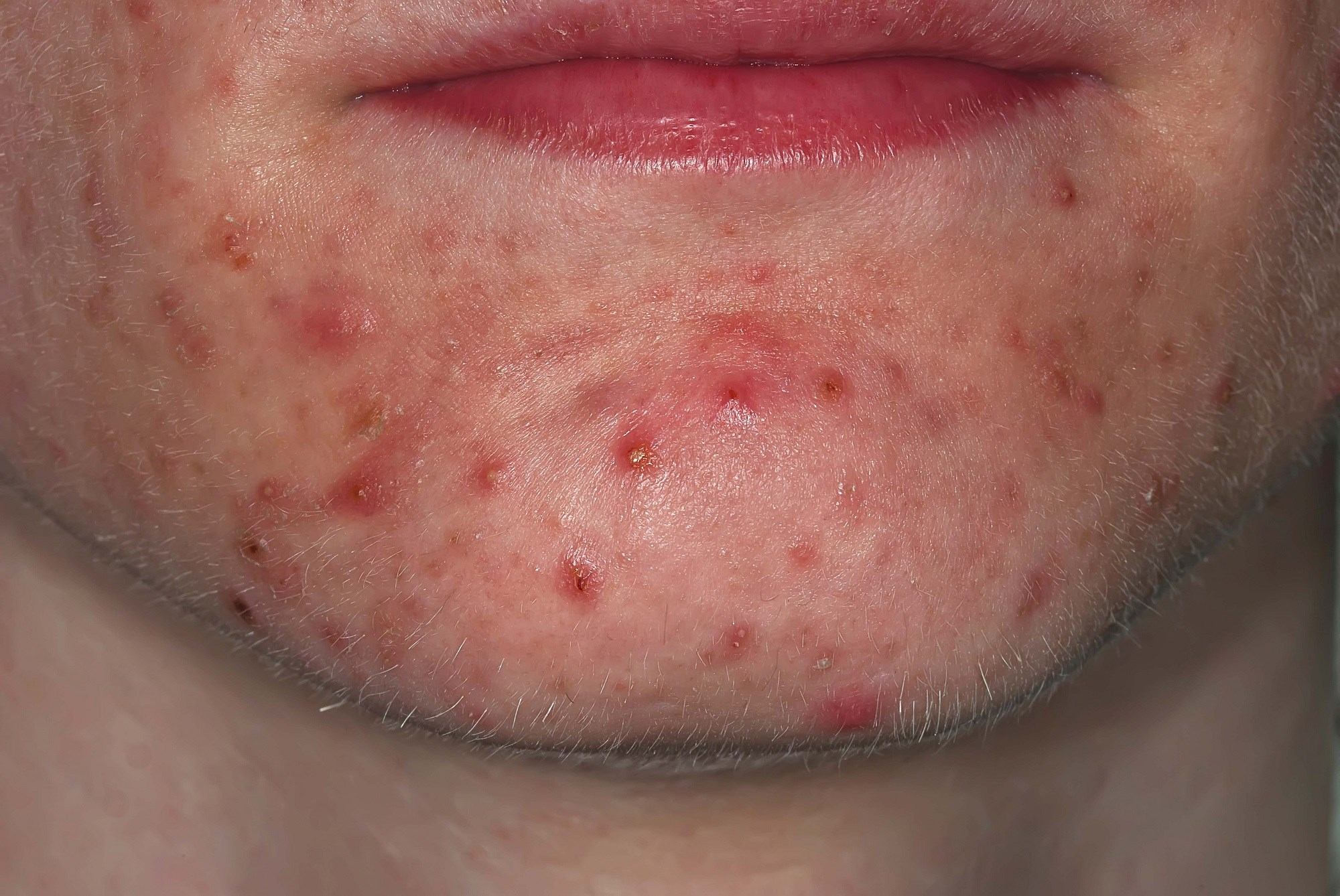 Daily Application of Minocycline Foam Effective Against Acne Vulgaris