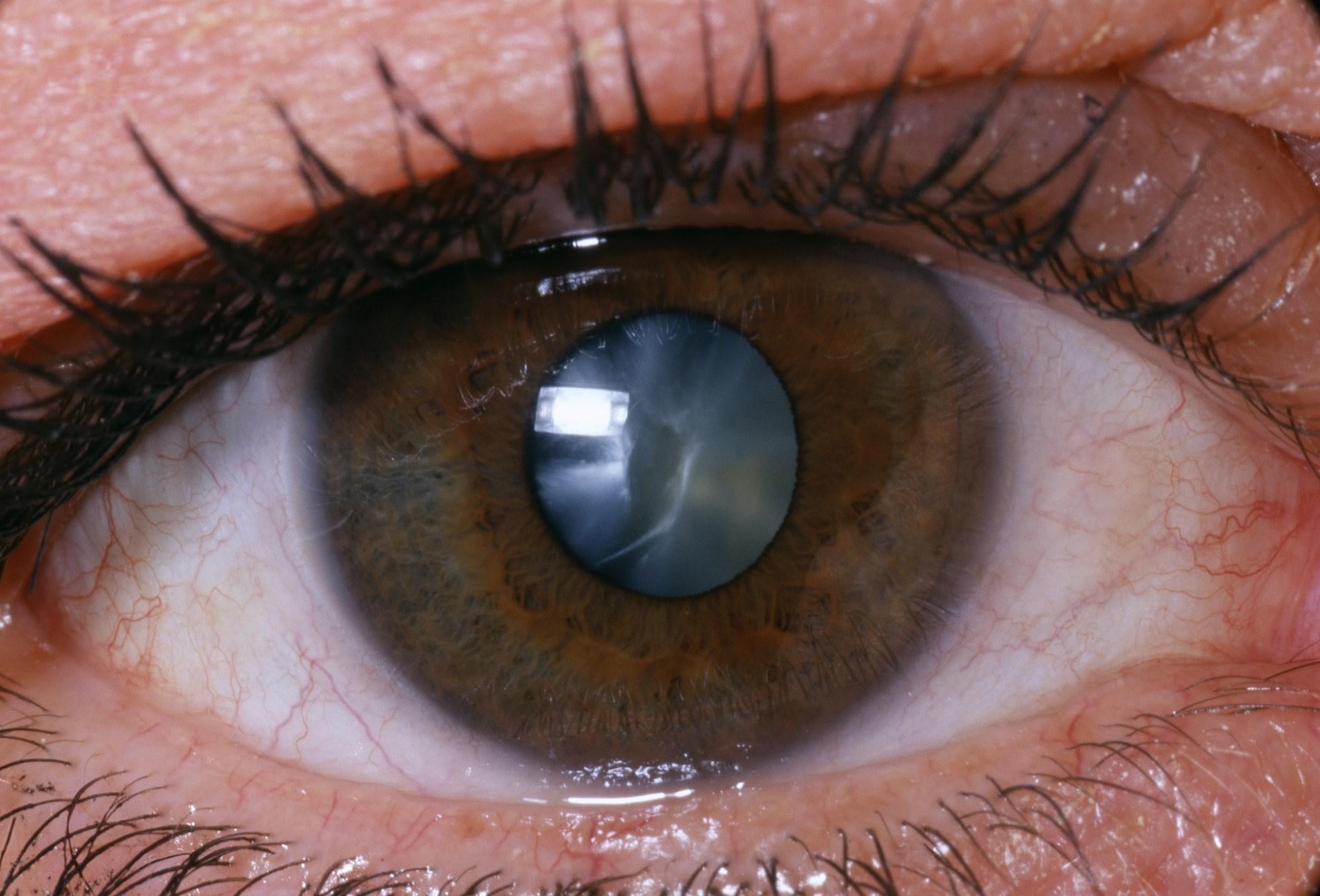 Pediatric Atopic Dermatitis Associated With Cataract Development