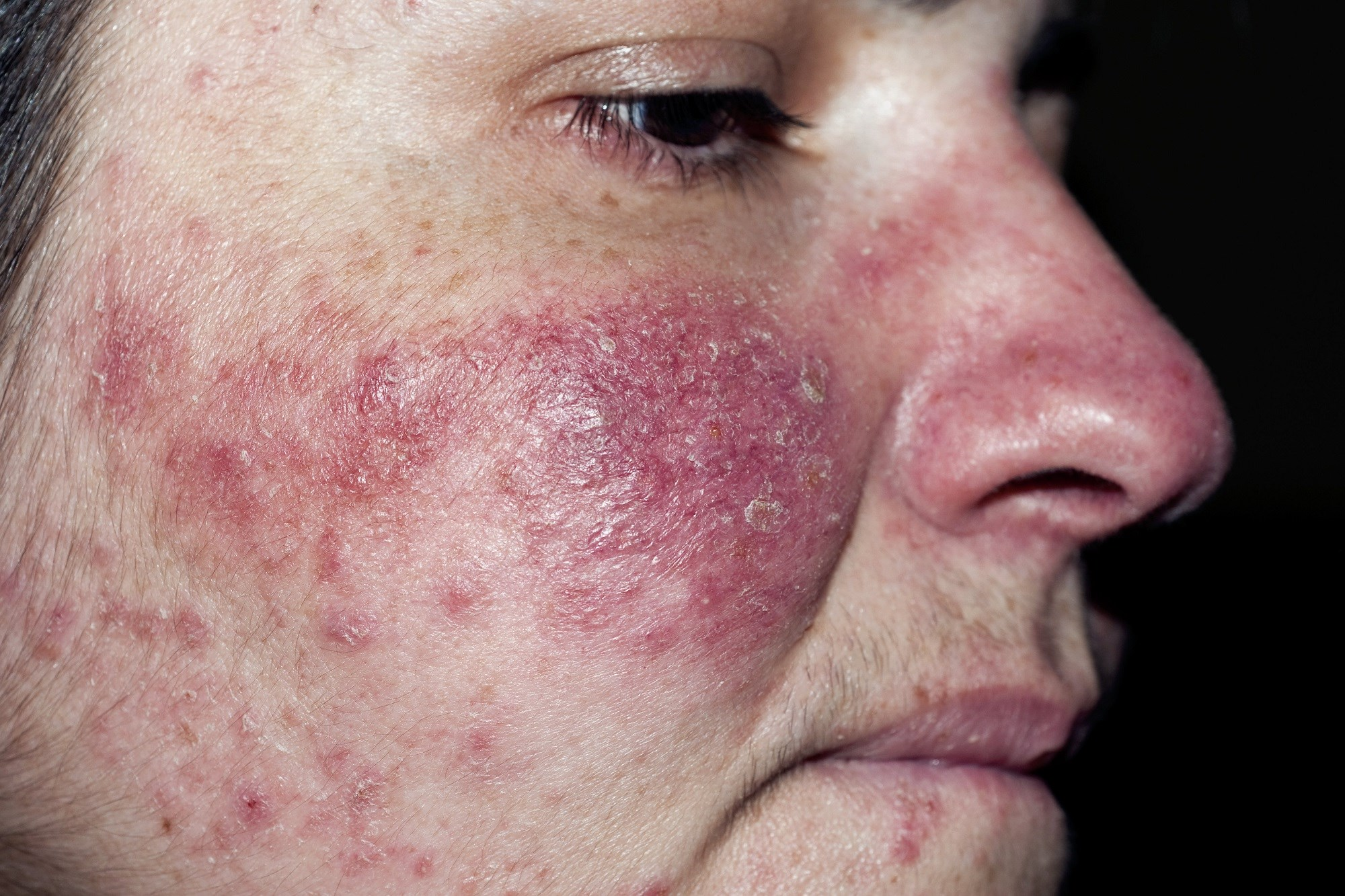 Patch Testing Beneficial in Rosacea to Detect Contact Sensitivity