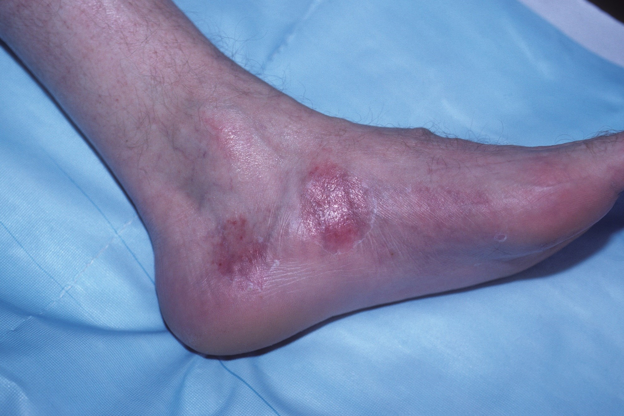 Prevalence of Psoriatic Arthritis Quantified in Patients With Psoriasis