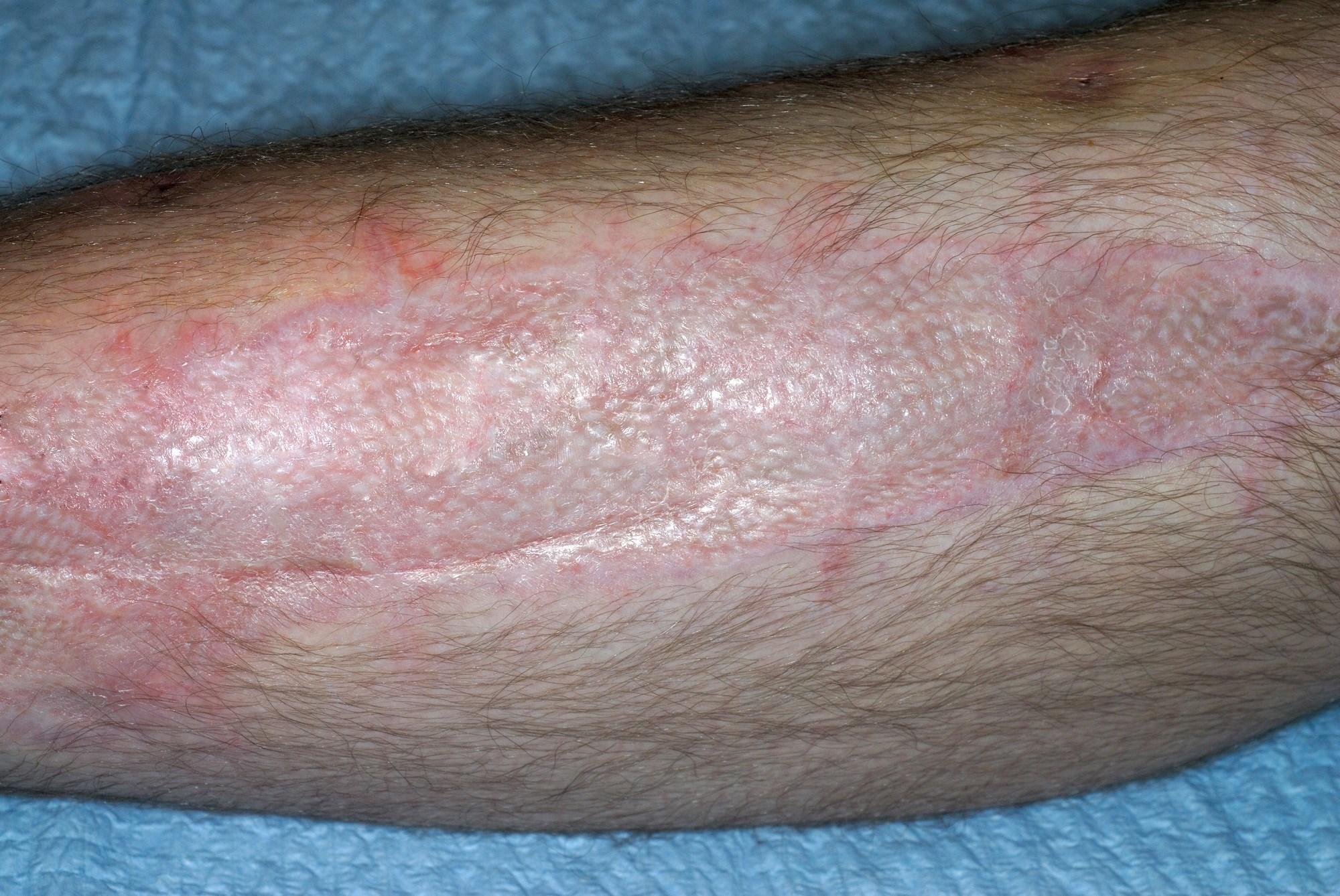 Fractional CO2-Laser Resurfacing Improves Appearance of Skin Grafts