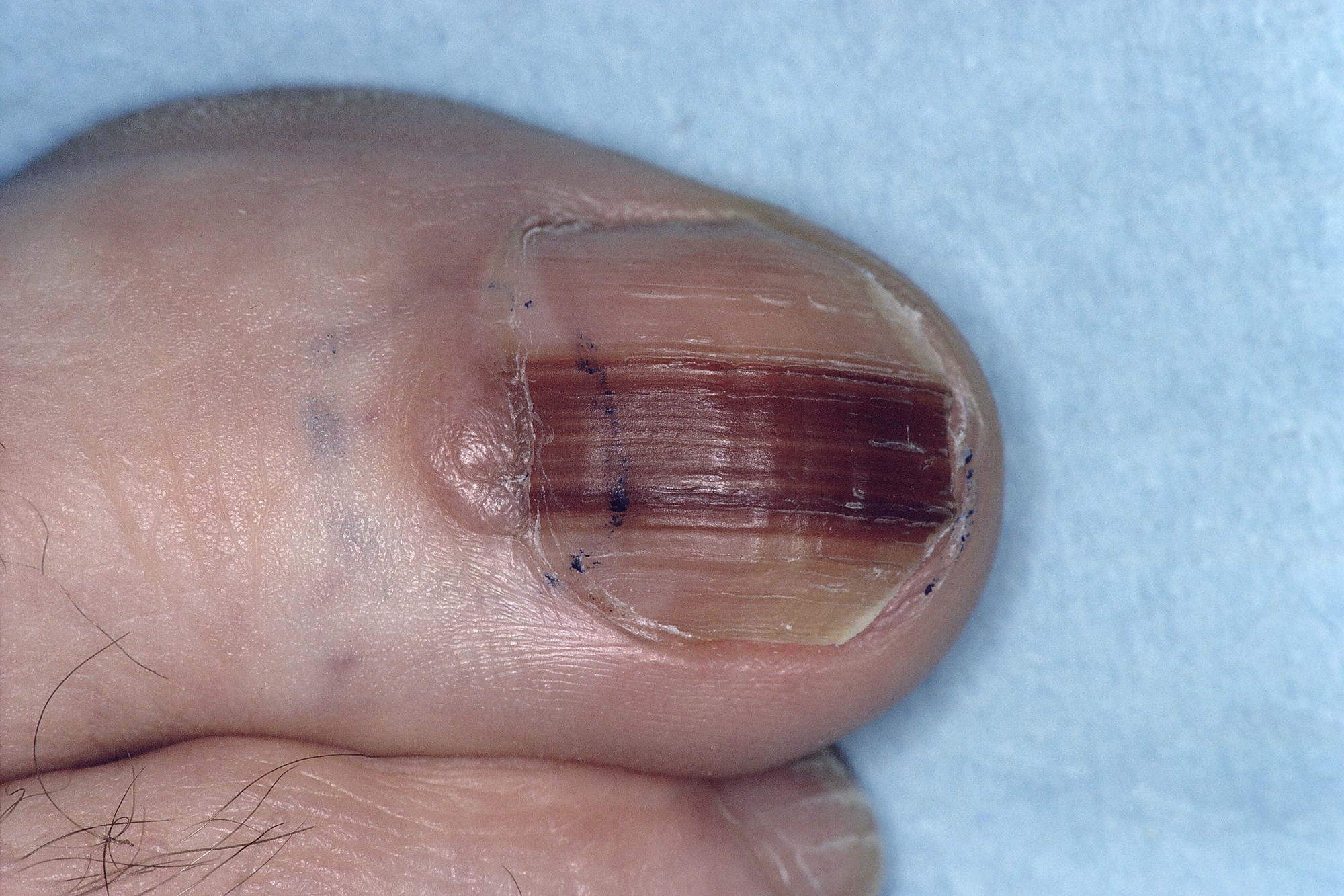 Early Identification of Nail Unit Melanoma Leads to Good Prognosis
