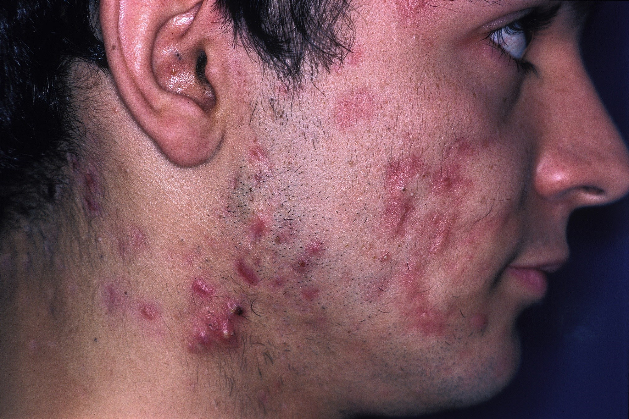 Amoxicillin Therapy Effective for Treating Inflammatory Acne