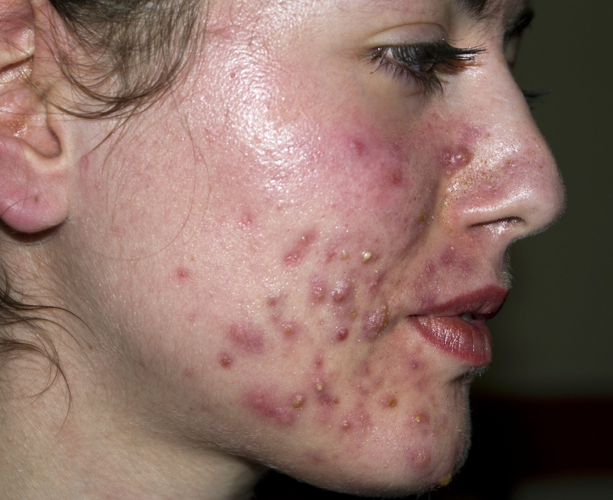 Once-Daily 7.5% Dapsone Gel Safe, Effective for Acne Vulgaris