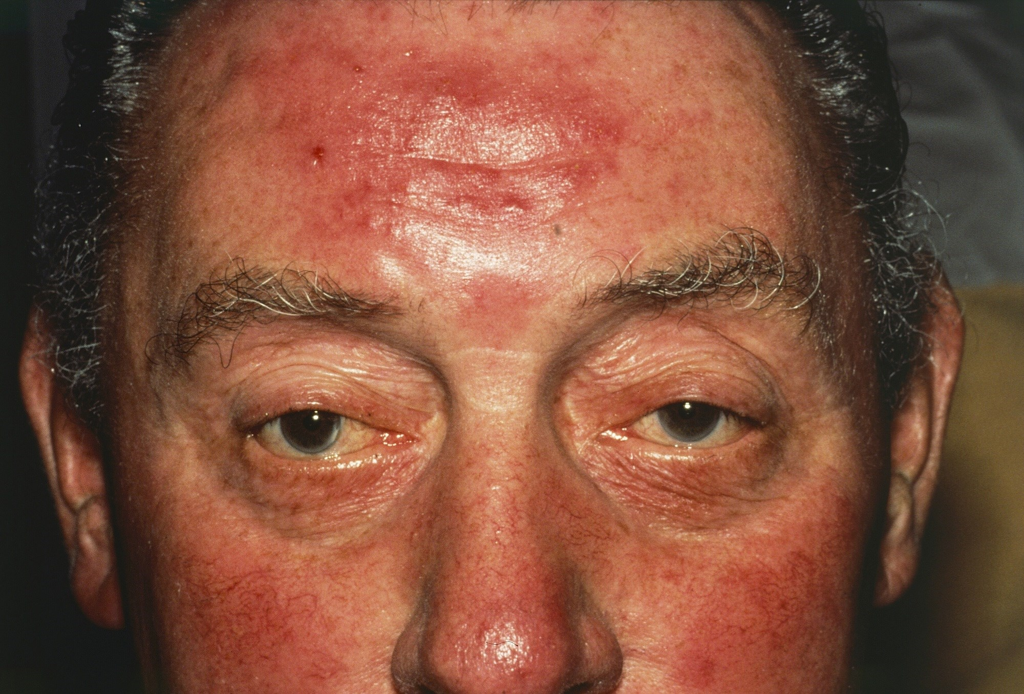 Clinical Improvement in Erythema of Rosacea With Oxymetazoline Therapy