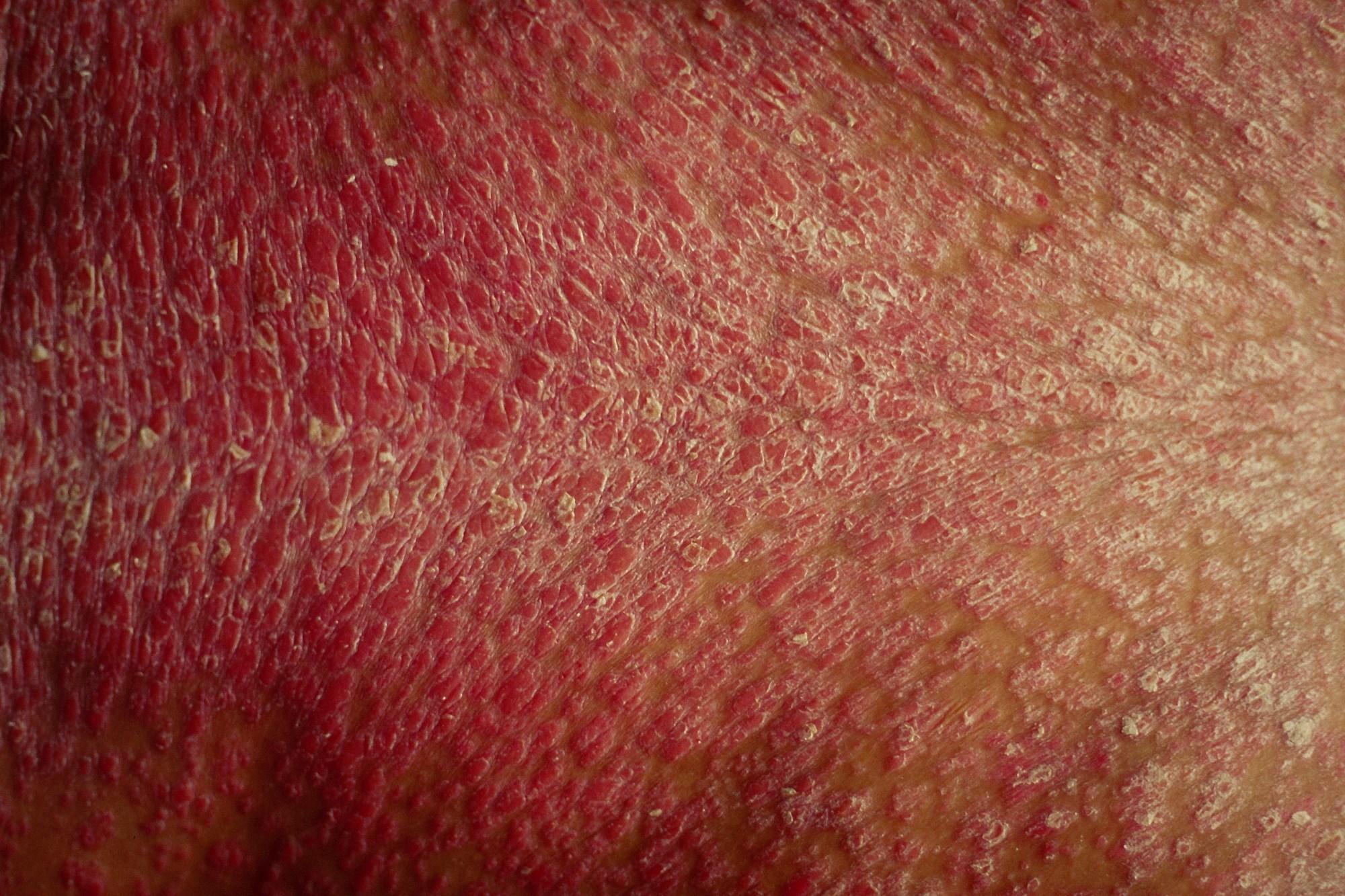 Ixekizumab Superior to Ustekinumab for Clearing Psoriasis Plaques
