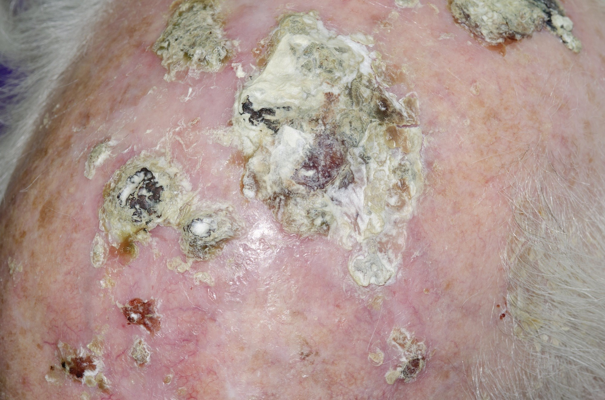 Physician Communication Linked to Improved Patient-Reported Outcomes in Actinic Keratosis