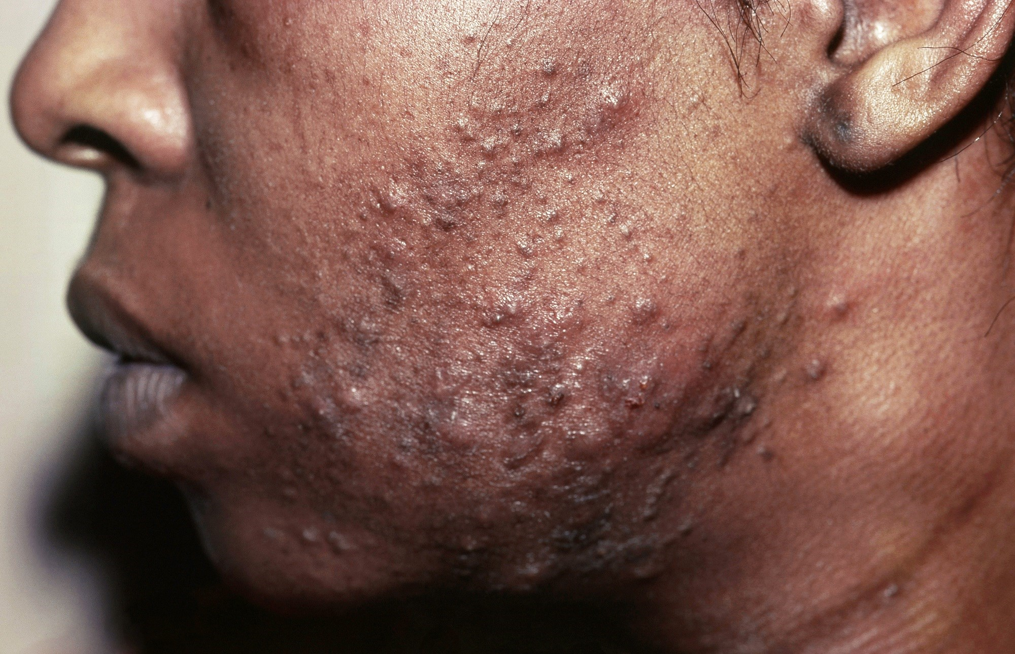 Acne in Skin of Color: Cautions for Chemical Peels