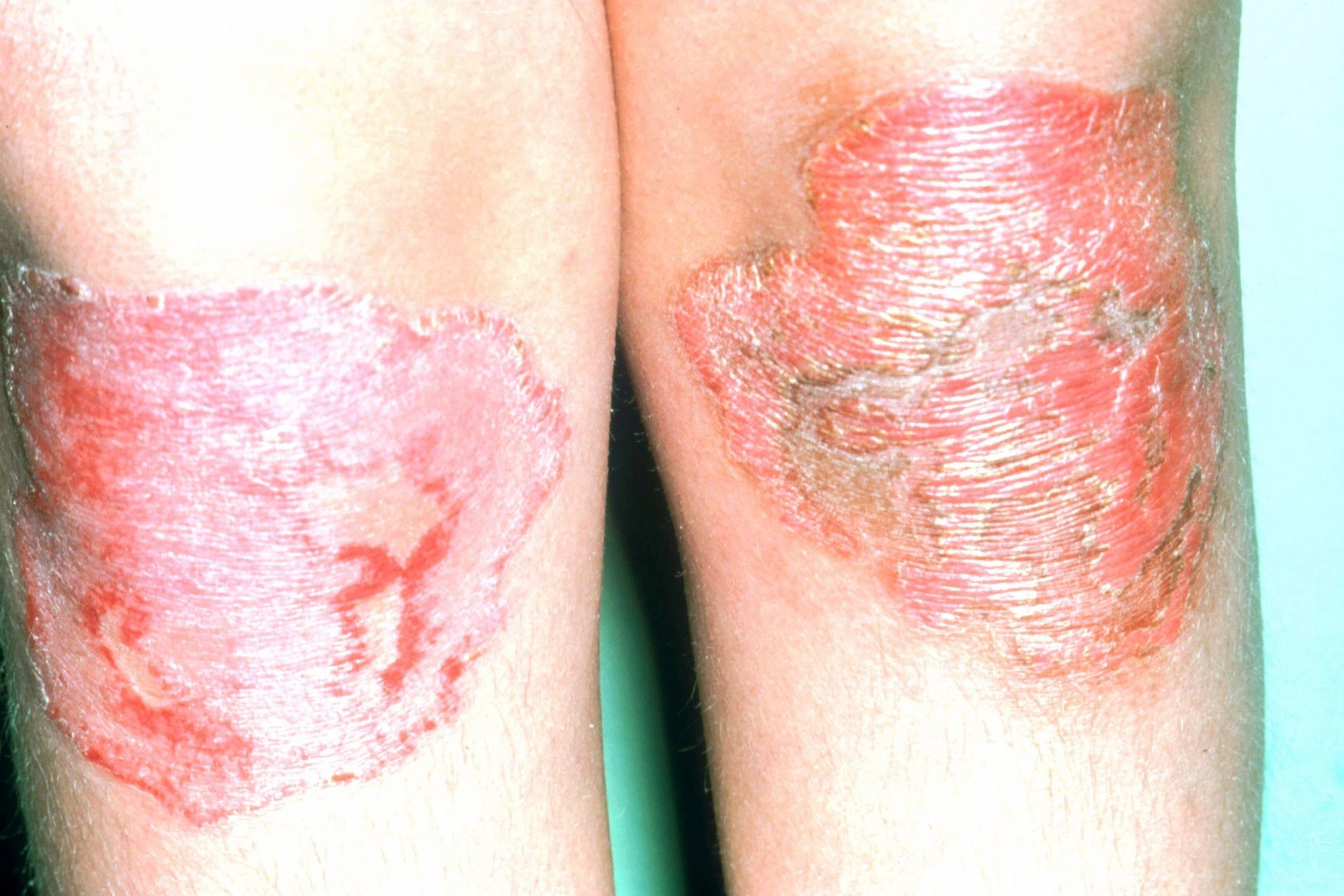 Elevated Mortality Risk in Psoriasis May Be Associated With Comorbidities