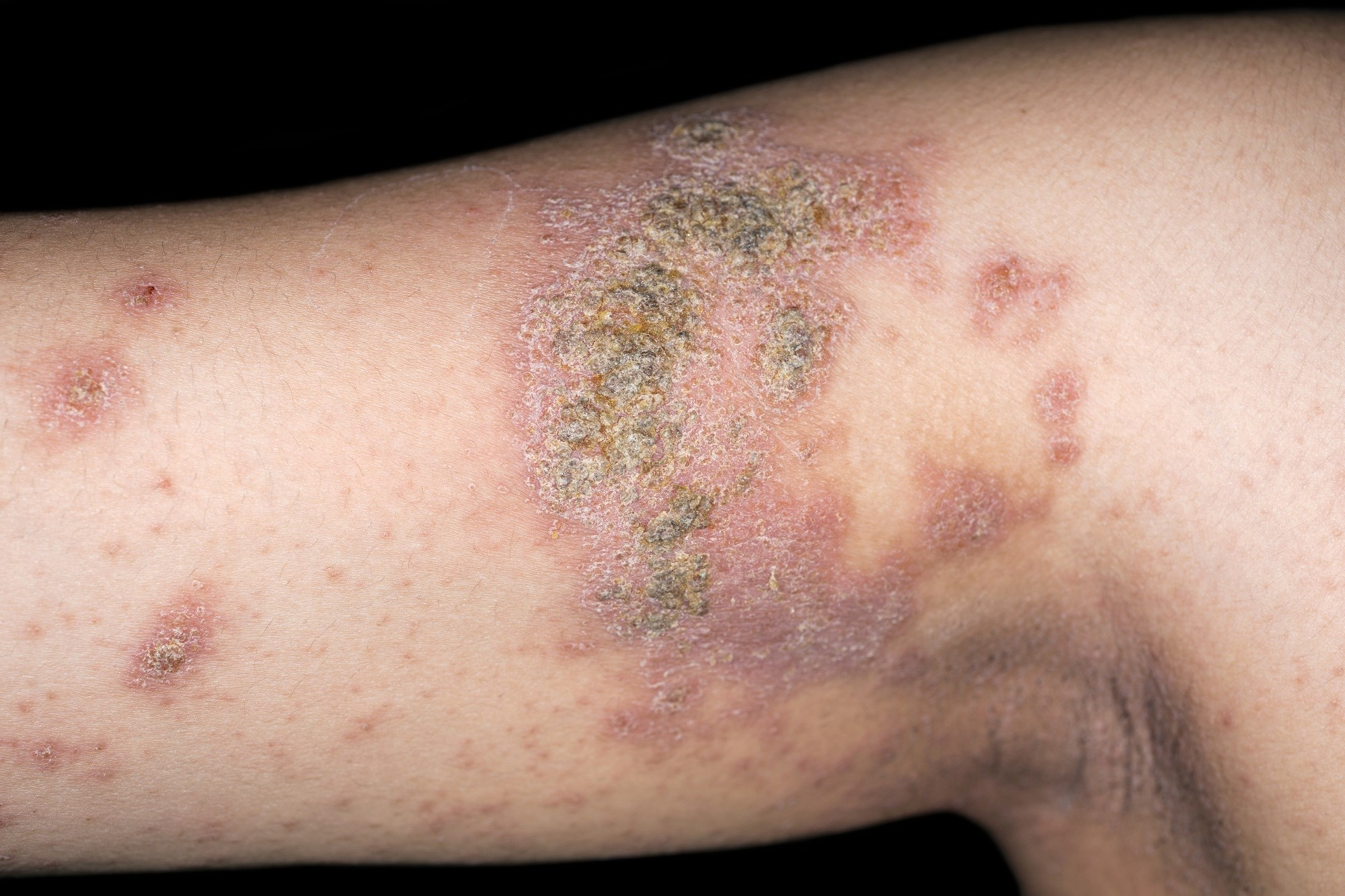 Prevalence of Atopic Dermatitis 7.3% in U.S. Adults