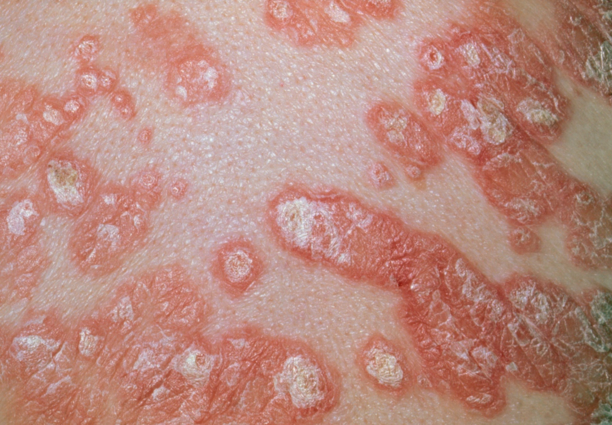 Safety Outcomes Associated With Apremilast Use in Psoriasis