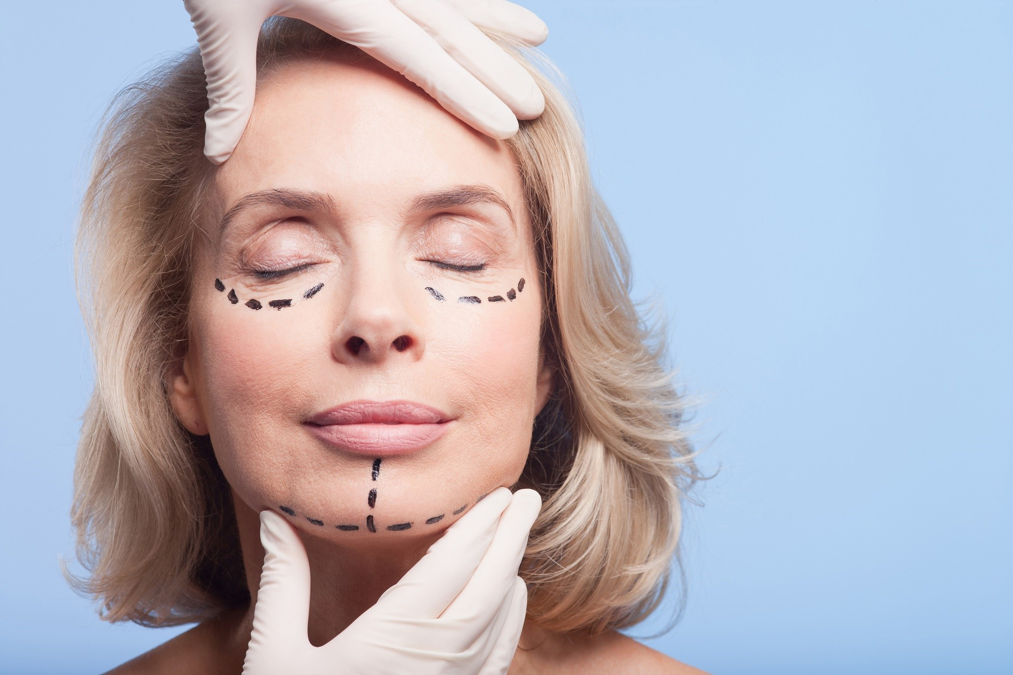 YouTube Videos May Provide Biased Info on Facial Plastic Sx