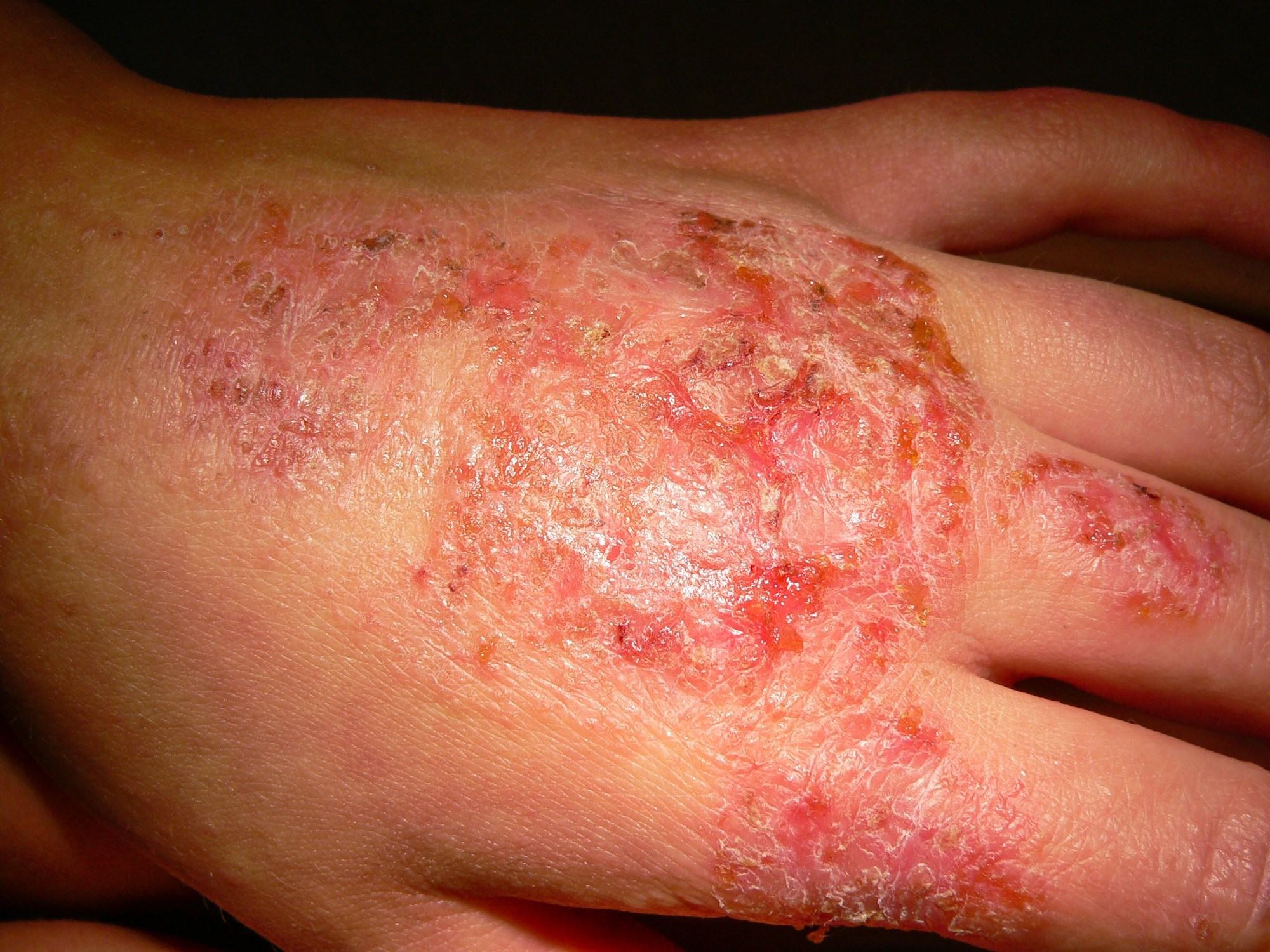 Dupilumab for Atopic Dermatitis: Is the Increased Cost Worth It?